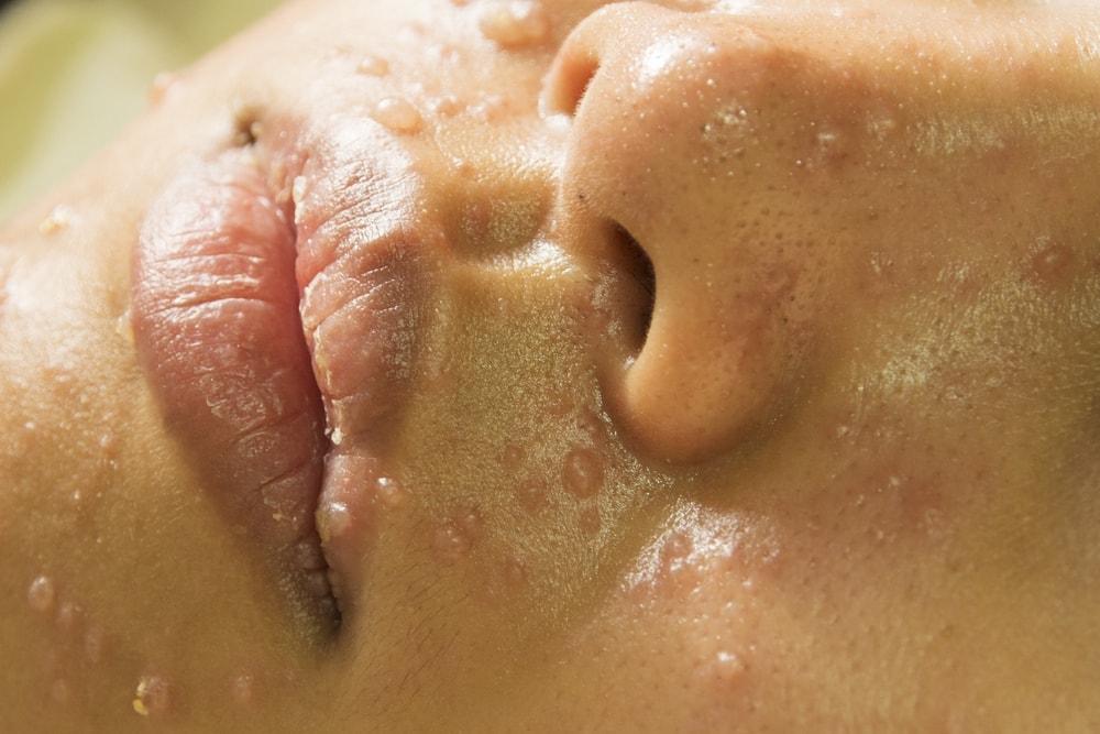 Chicken pox during pregnancy