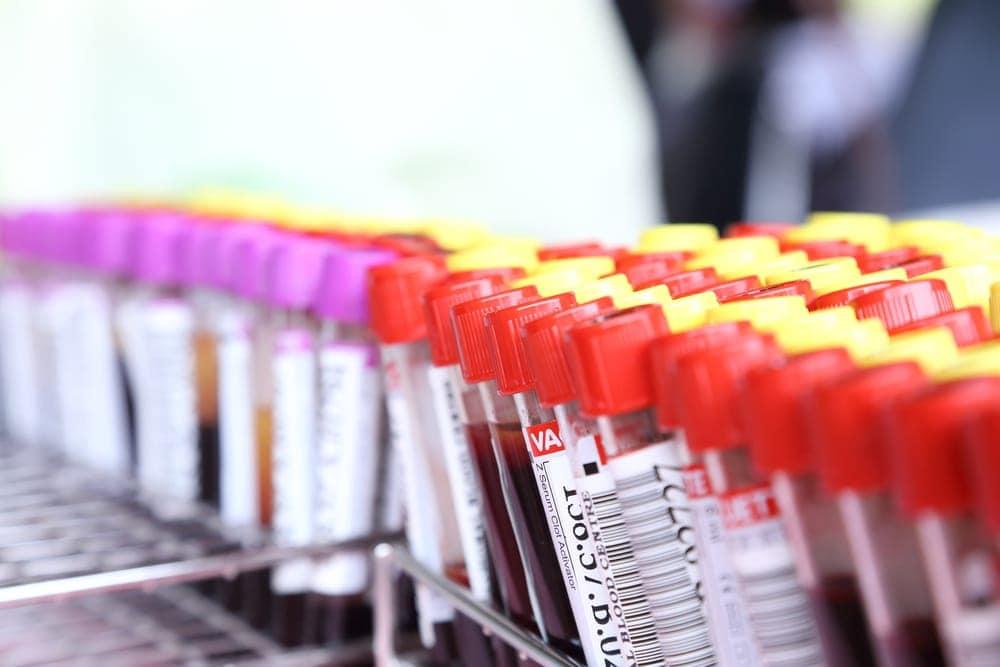 blood-tests-vials-samples   American Pregnancy Association