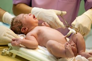 cord-blood-banking-new-born-doctor-cutting-umbilical-cord   American Pregnancy Association