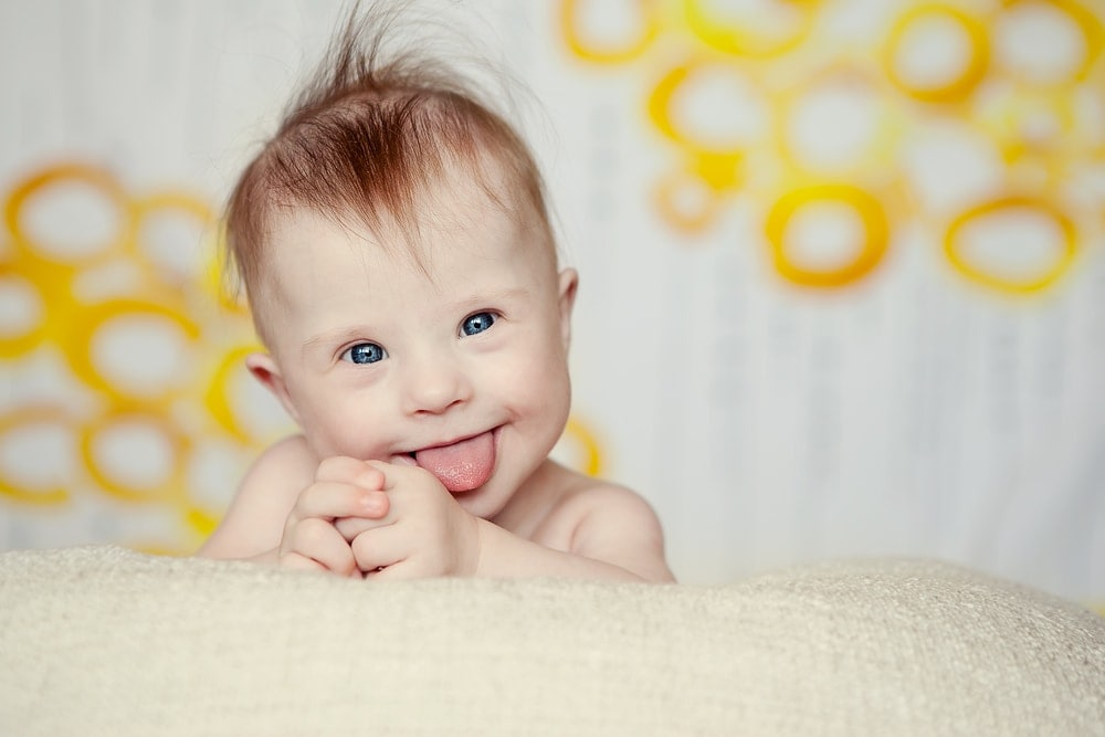 down-syndrome-baby-smiling-tongue-out | American Pregnancy Association