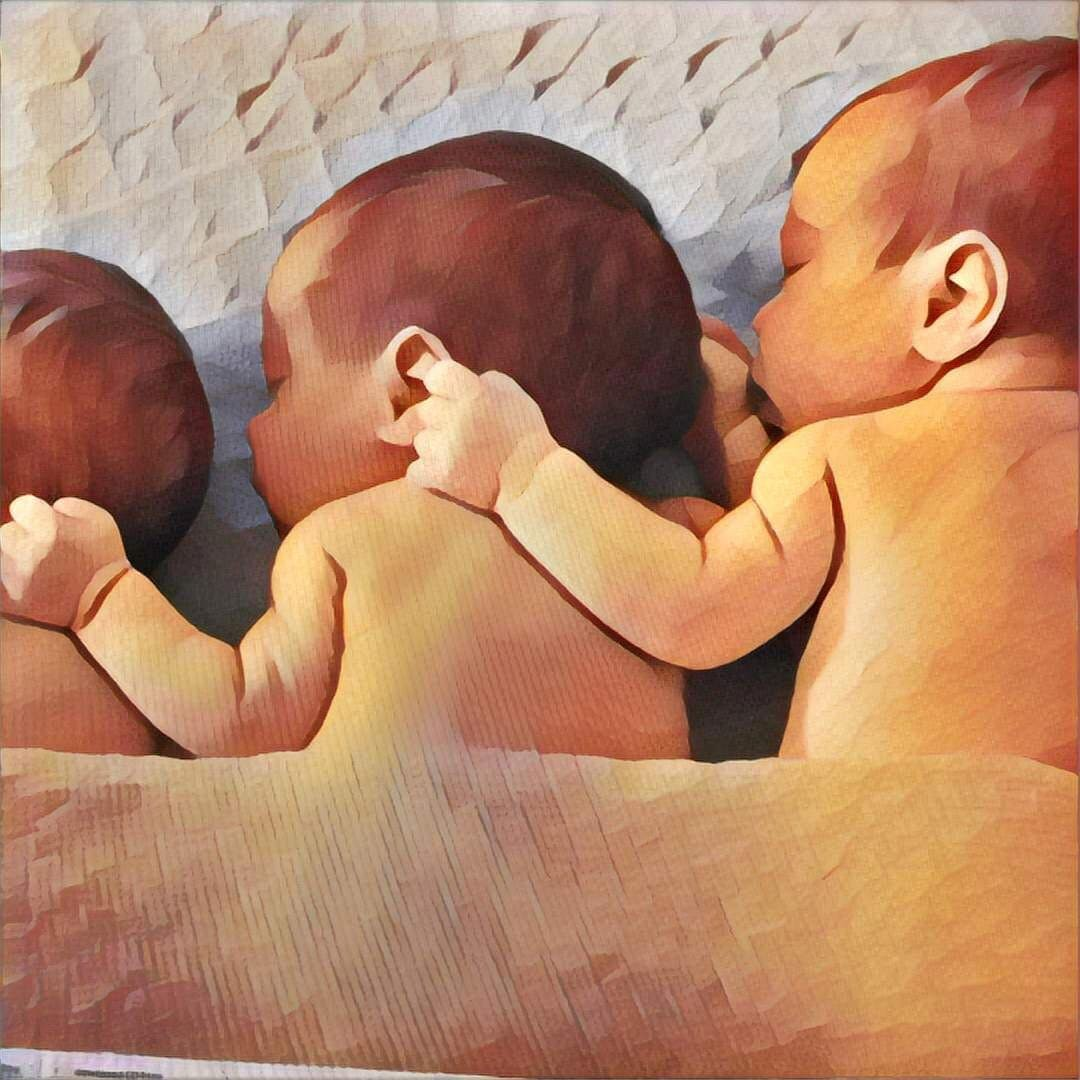 Multiples Pregnancy: Twins, Triplets and More