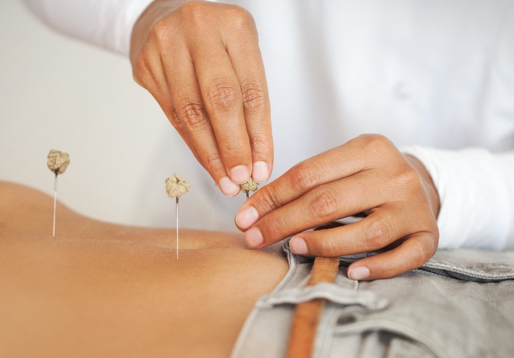Acupuncture for fertility   American Pregnancy Association