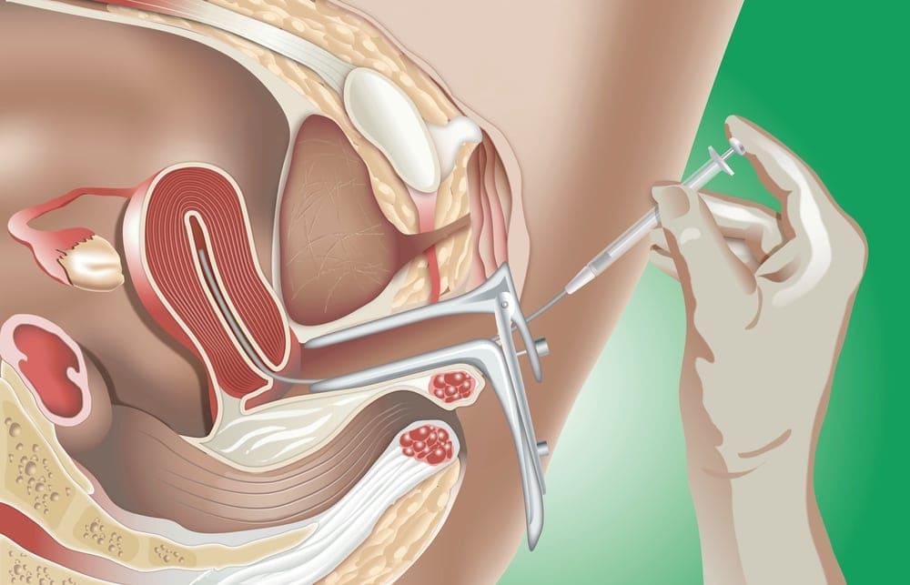 image-of-IUI-Intrauterine-Insemination | American Pregnancy Association