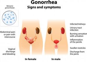 signs-symptoms-gonorrhea | American Pregnancy Association