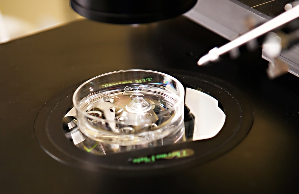 The In Vitro Fertilization: IVF process