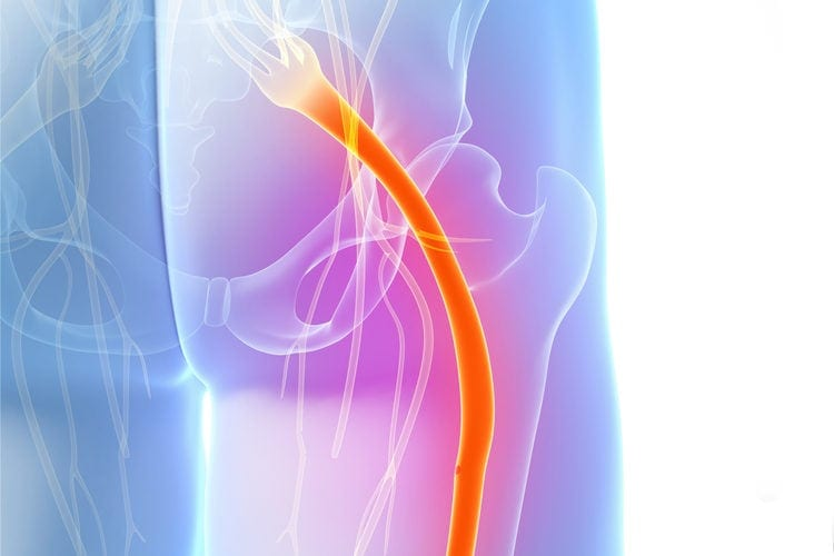 color-illustration-sciatic-nerve-pain-during-pregnancy | American Pregnancy Association