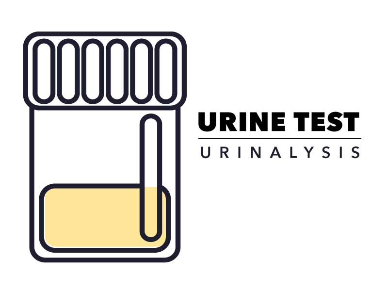 Picture of a urine sample illustration with the text - Urine Test: Urinalysis