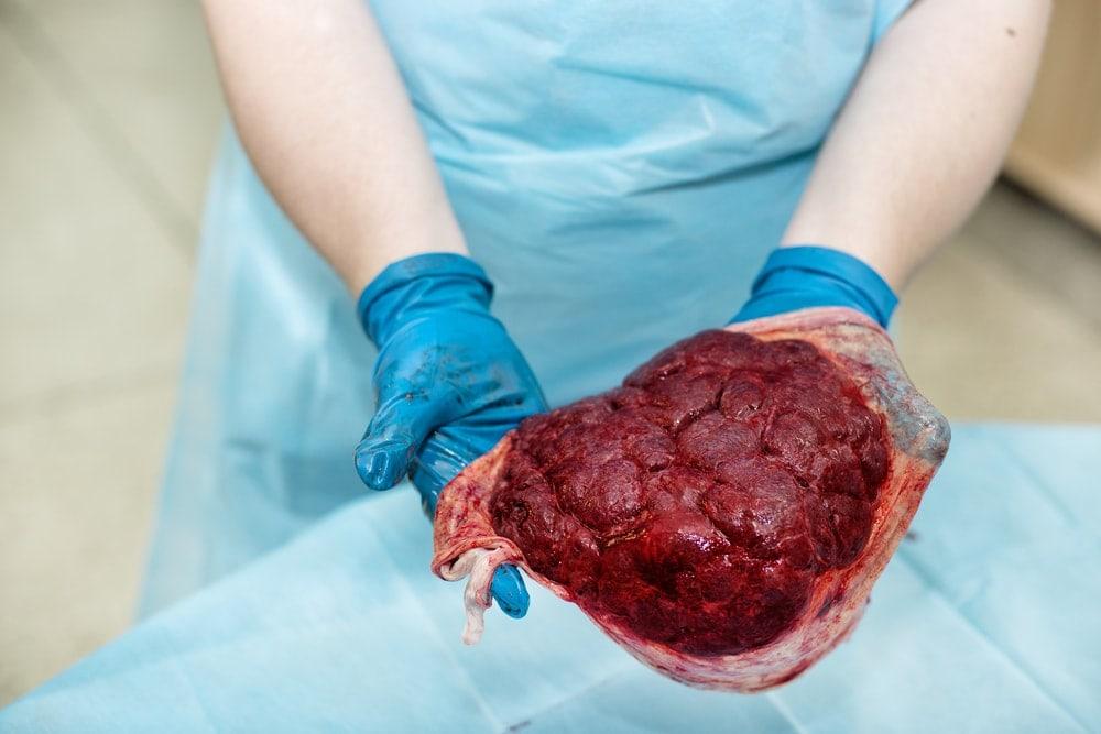 Image of the placenta encapsulation process