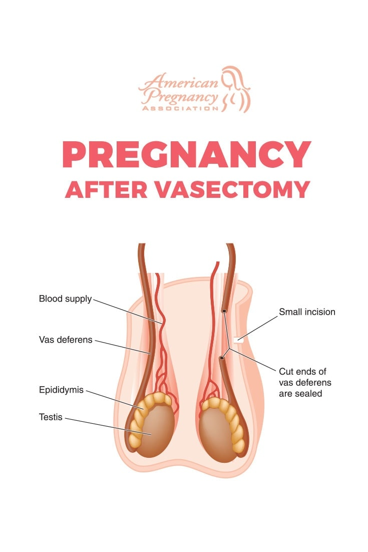 male-fertility-testing-after-vasectomy   American Pregnancy Association