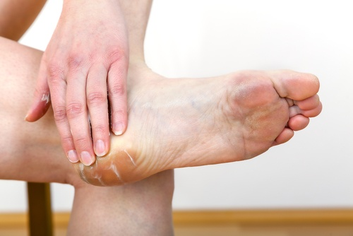 Treating Calluses Naturally During Pregnancy