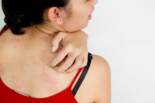 Treating Itchy Skin Naturally While Pregnant
