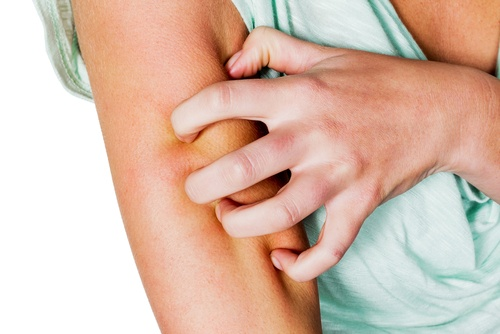 Treating Itchy Skin Naturally During Pregnancy