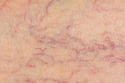 Pregnant woman with varicose veins