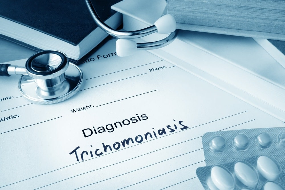 Trichomoniasis symptoms, treatment, prevention