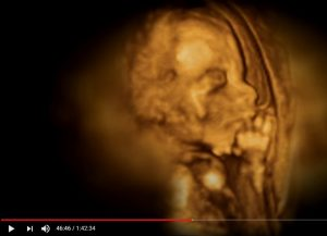what happens in the womb video | American Pregnancy Association