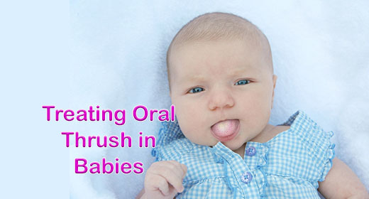 What You Need to Know About Thrush in Babies